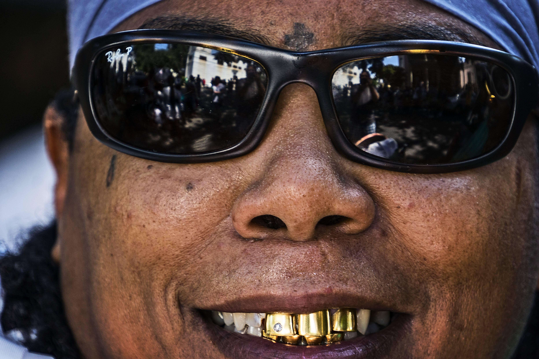 Golden Teeth